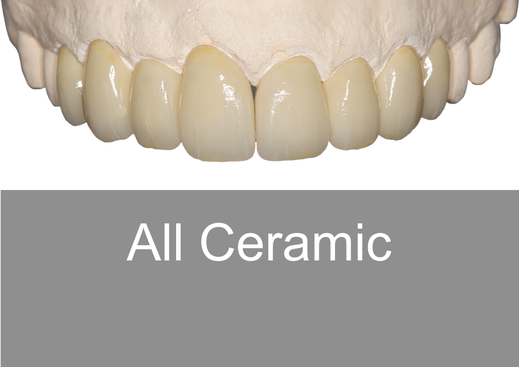 Full Zirconia - Bremadent Dental Laboratory