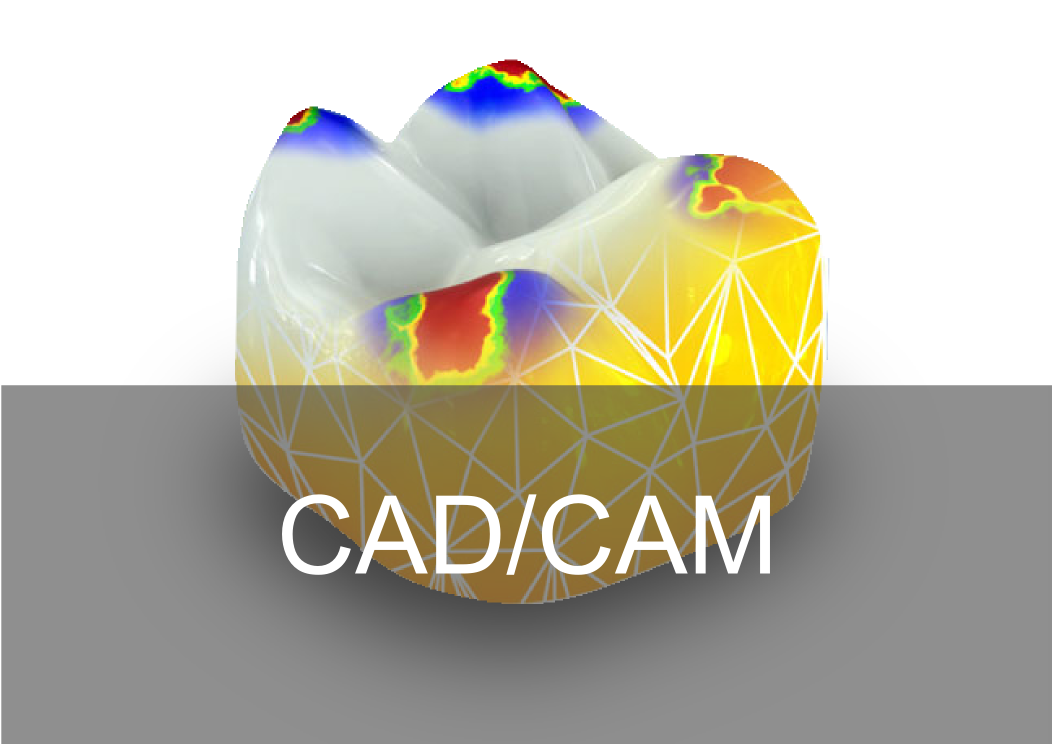 CADCAM Digital - Bremadent Dental Laboratory in London