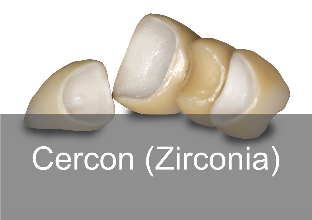 Cercon Zirconia - Bremadent Dental Laboratory, London