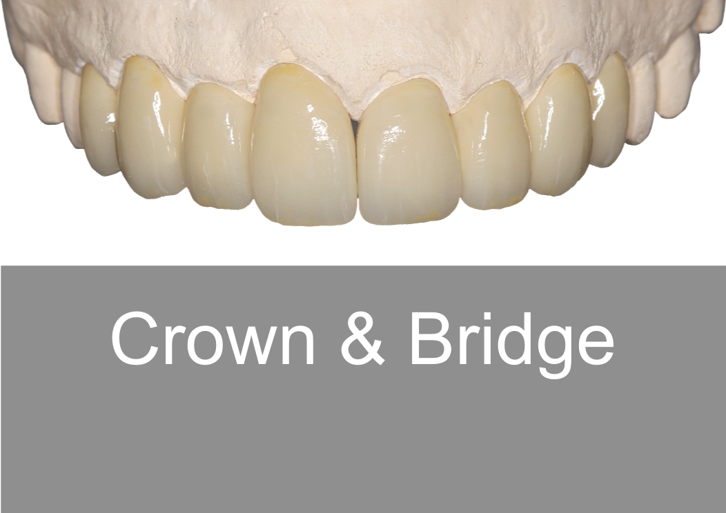 Crown & Bridge - Bremadent Dental Laboratory, London