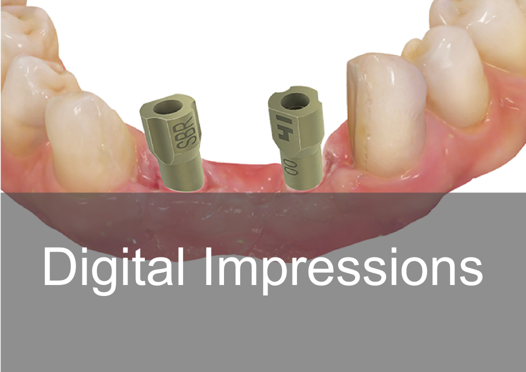 Digtal Impressions - Bremadent Dental Laboratory in London