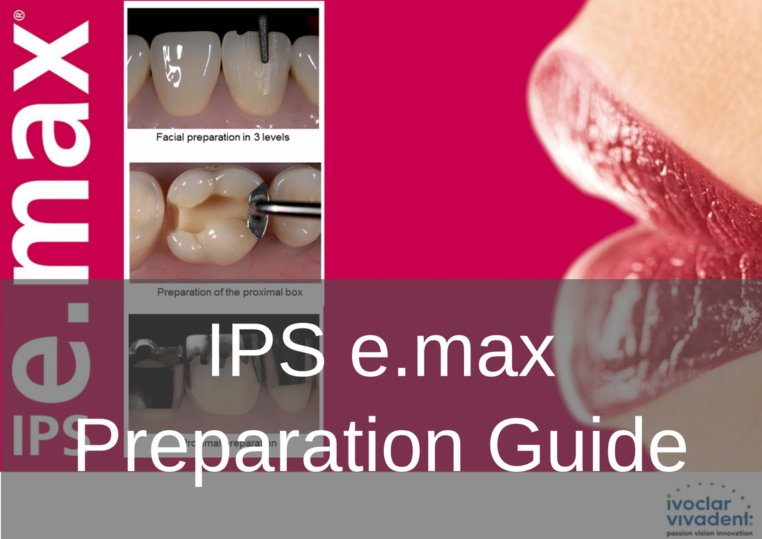 IPS e.max prep guide - Bremadent Premier London Dental Laboratory