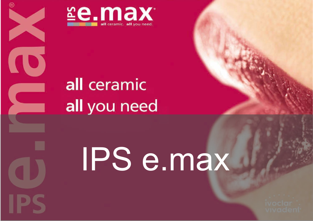 IPS e.max  - Bremadent Dental Laboratory, London