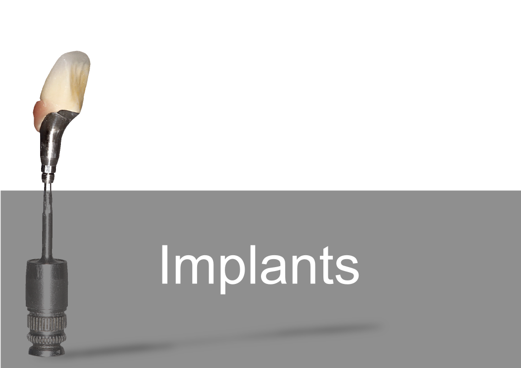Implant Crown & Bridge - Bremadent Dental Laboratory, London
