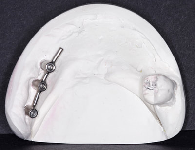 Swissedent removable implant denture on screw retained CM bar.