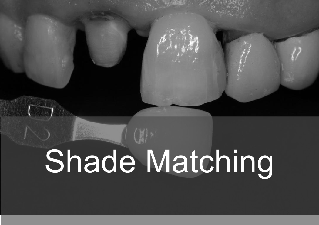 Shade Matching - Bremadent Dental Laboratory, London