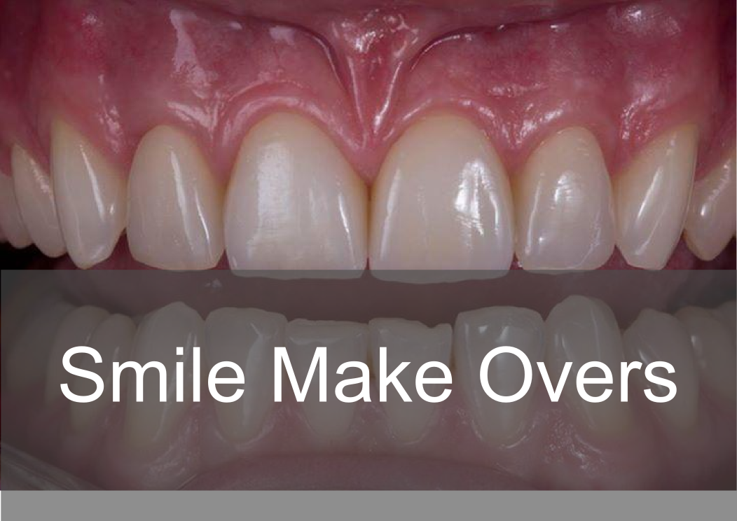 Smile Make Overs - Bremadent Dental Laboratory, London